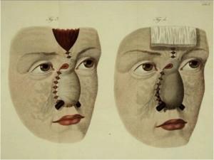 cirugía plástica - registro visual 1816_1916