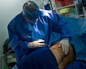 liposucción asistida láser vs liposucción tradicional - revisión sistemática