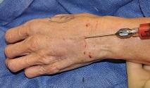 micro injertos autólogos - rejuvenecimiento mano