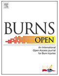 Burns Open