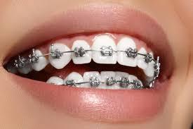 Aparatologia ortodoncica