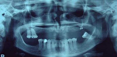 remodelación ósea