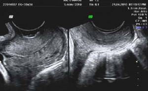Cervicometría e índice de consistencia cervical