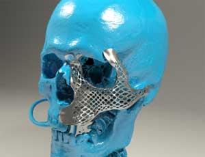 implante malar