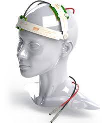 estimulación eléctrica cerebro